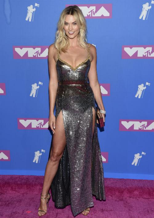 La supermodelo Karlie Kloss. (AP)