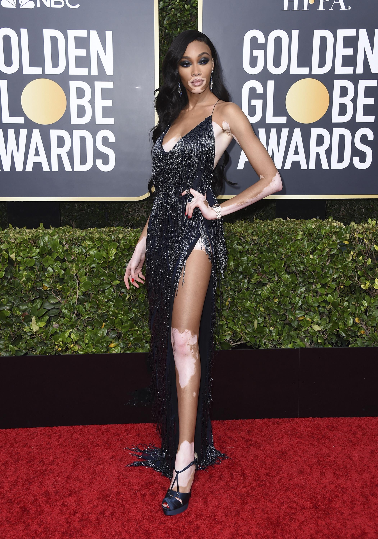 La modelo Winnie Harlow llevó un vestido lencero bordado con flecos de Laquan Smith, zapatos Christian Louboutin y joyas Lorraine Schwartz. (AP)