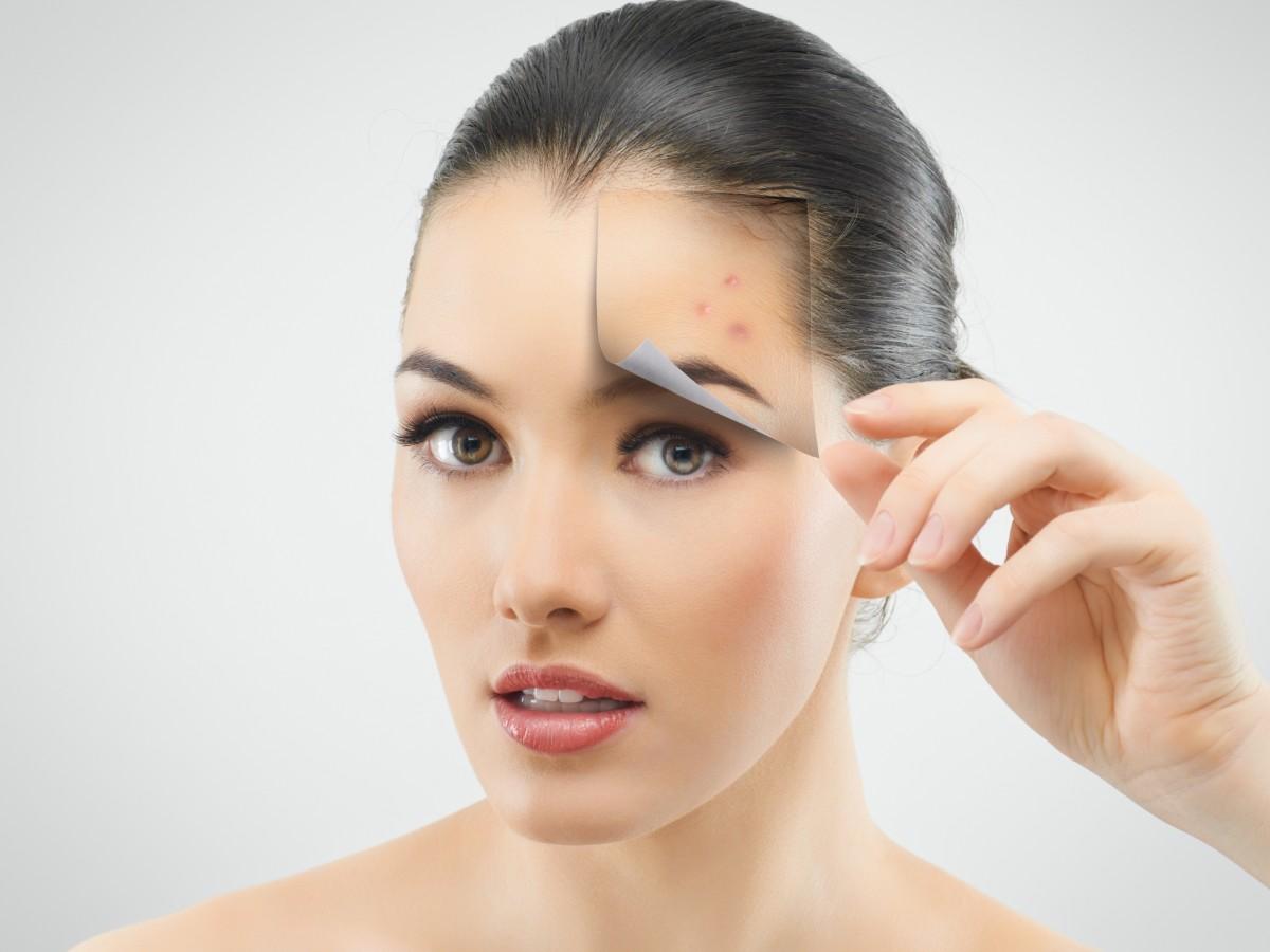Los cinco ácidos más comunes en los productos de belleza