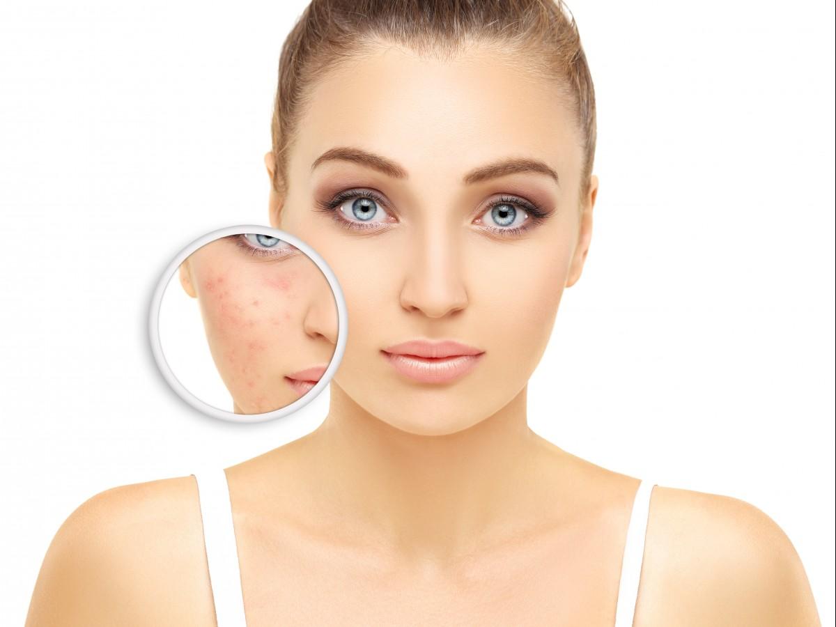 Recomendaciones para controlar el acné