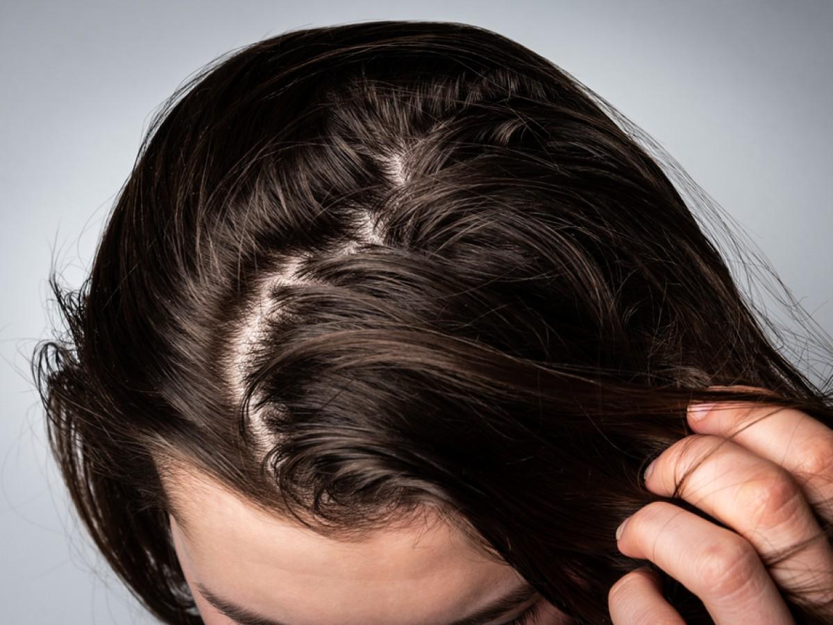 Elimina la grasa del cabello de una vez y por todas