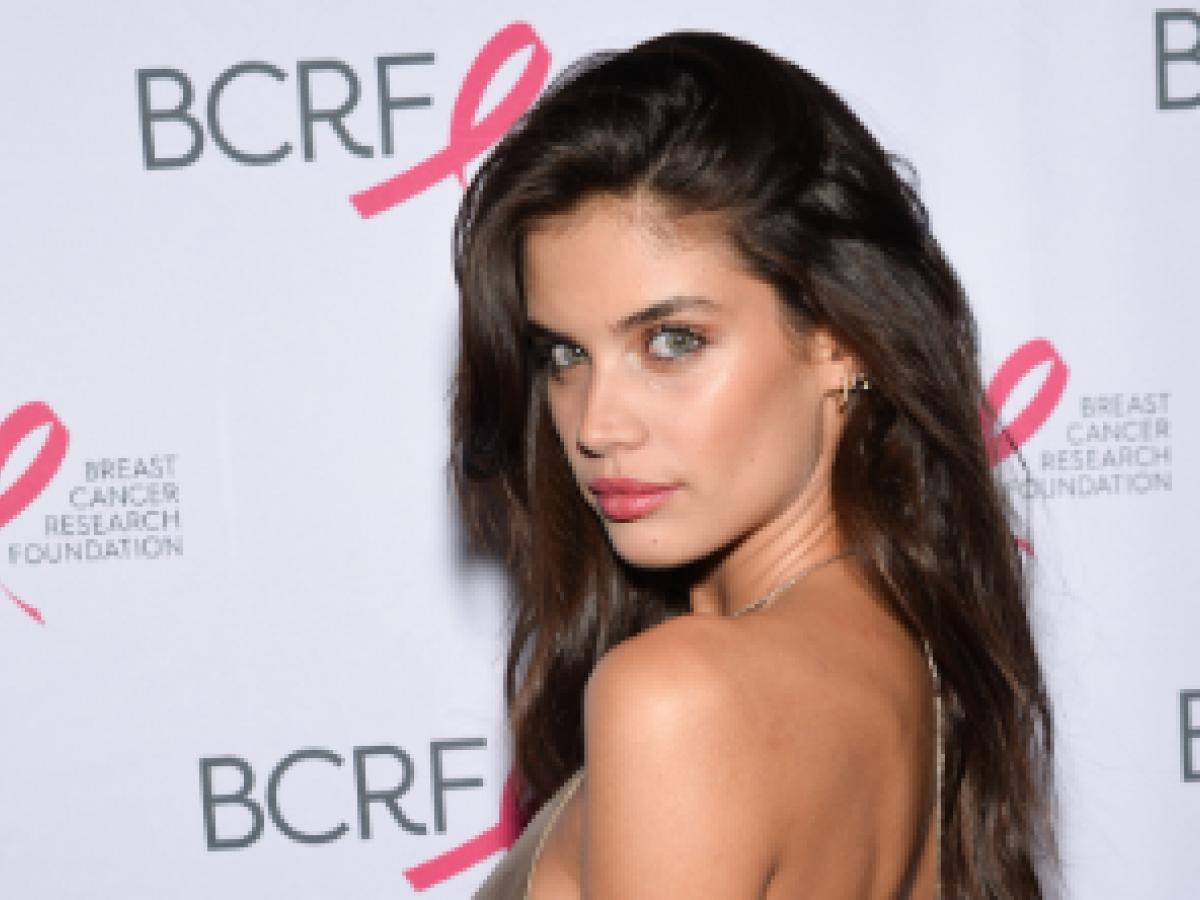 Modelo de Victoria's Secret revela que padece de tricotilomanía