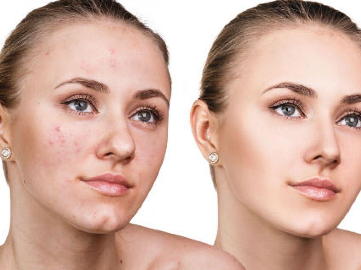 Lo que debes saber para deshacerte de las marcas de acné