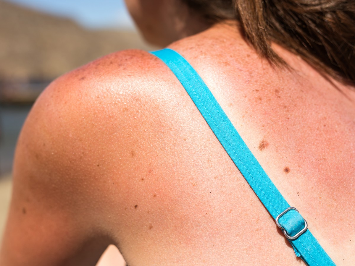 Productos para reparar tu piel y tu cabello dañado por el sol