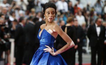 Artista diseña muñecas con vitiligo para romper los estereotipos de belleza