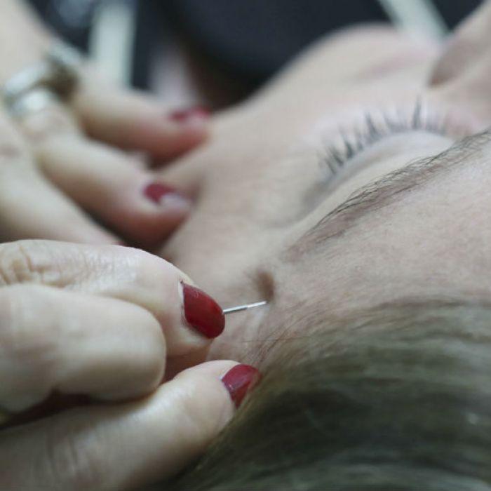 ¿Conoces sobre la acupuntura cosmética?